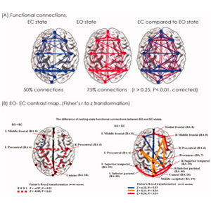 Electroencephalography and brain functional connectivity