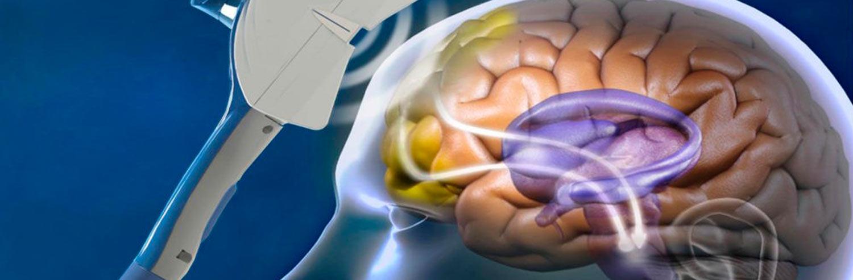 Uso de Estimulación Magnética Transcraneal en Logopedia
