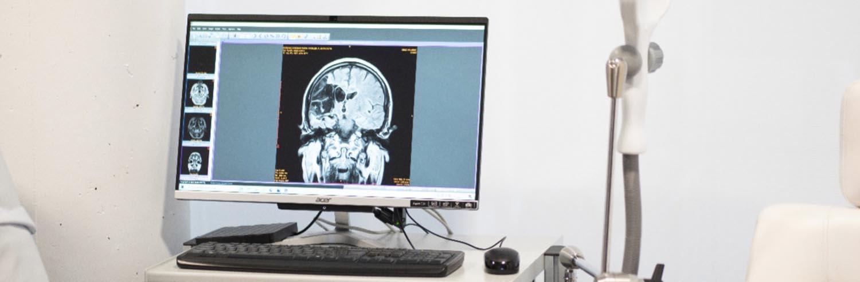 Estimulación Magnética Transcraneal en el Centro Europeo de Neurociencias